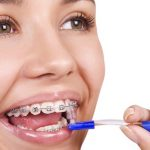 How to Determine the Right Age To Put Your Child in Braces
